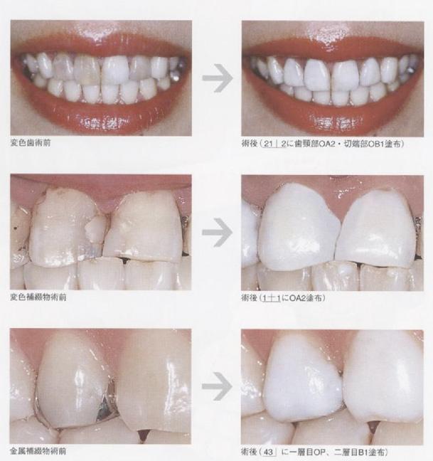 歯のマニキュアは応急処置!綺麗な歯になる別の方 …